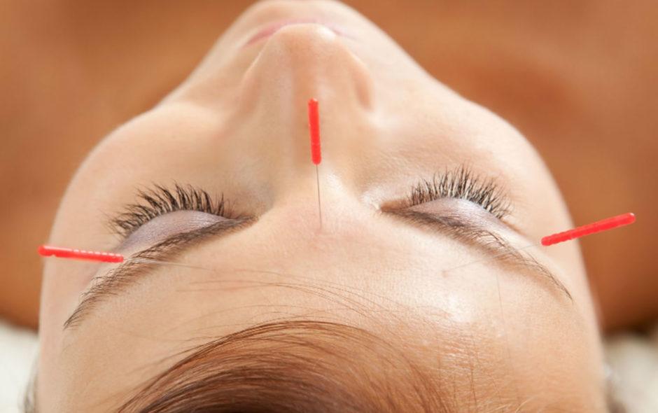 acupuntura ayurvédica