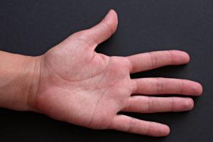 puntos marma de la mano